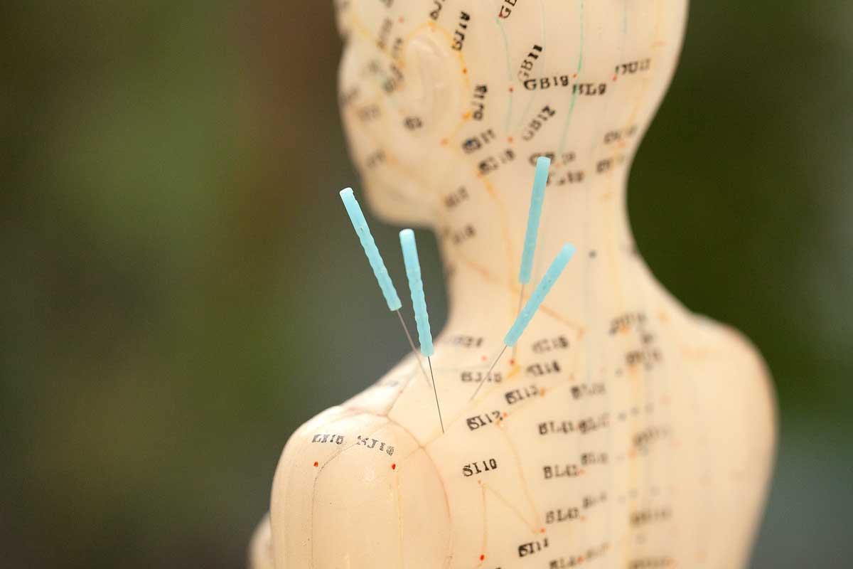 Leistungsspektrum Akupunktur